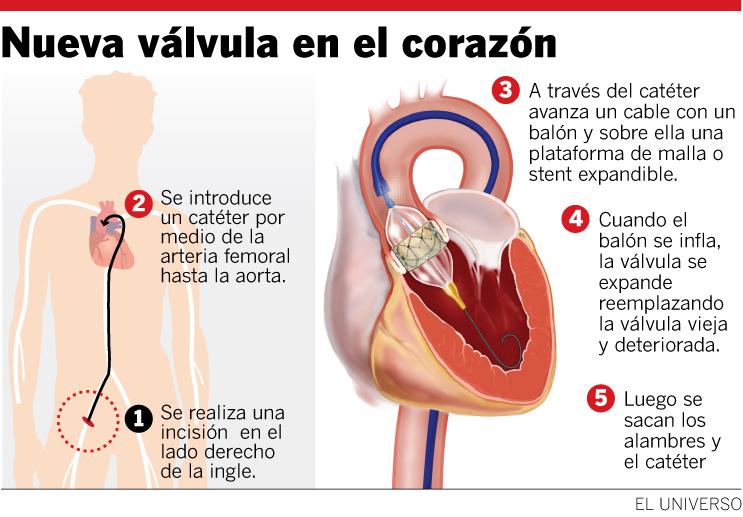 Que es una válvula aórtica del corazon